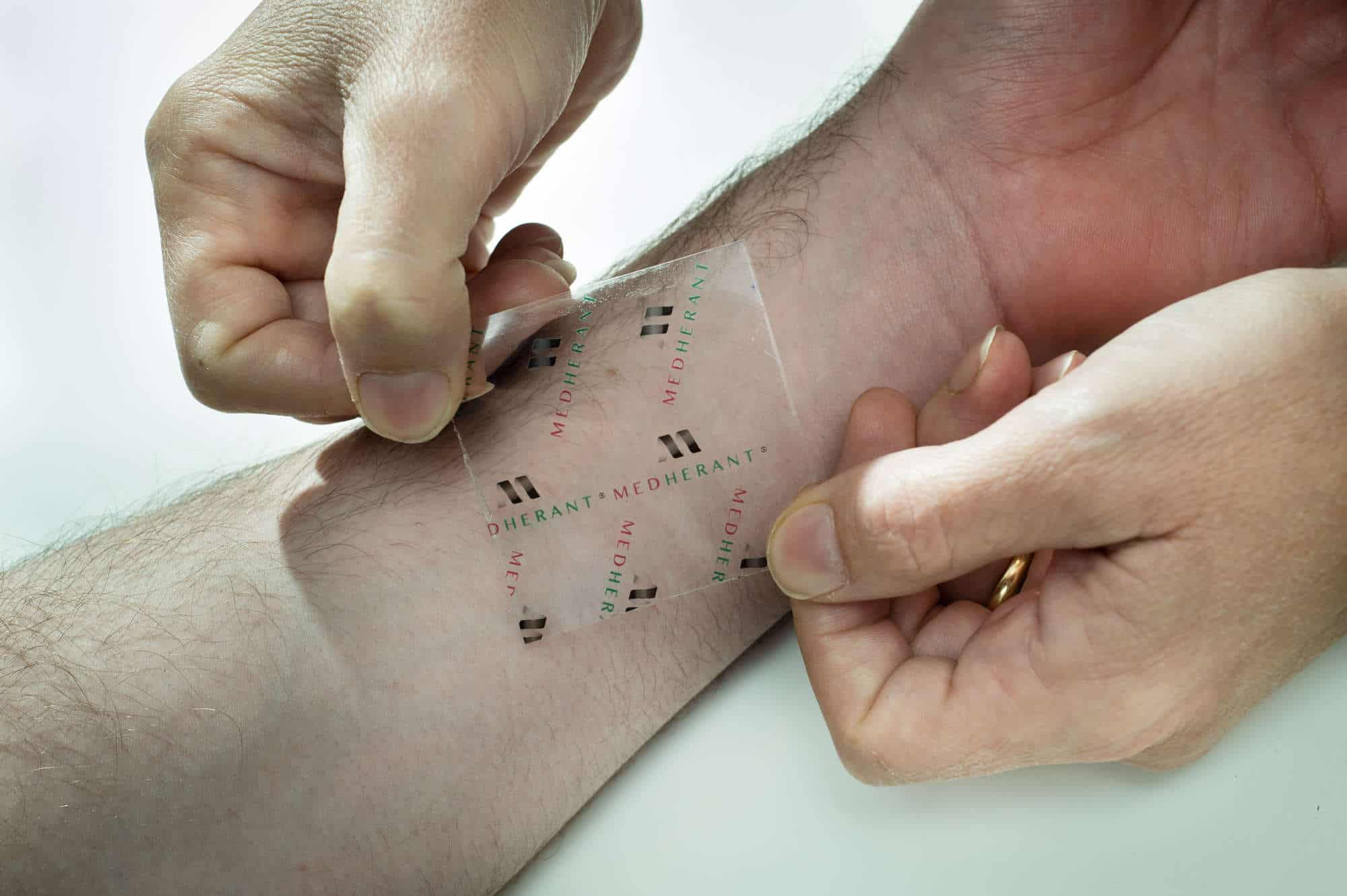 Ibuprofen Skin Patch Created For Direct Pain Relief